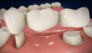 Phương pháp trồng răng giả cố định mất chi phí bao nhiêu?
