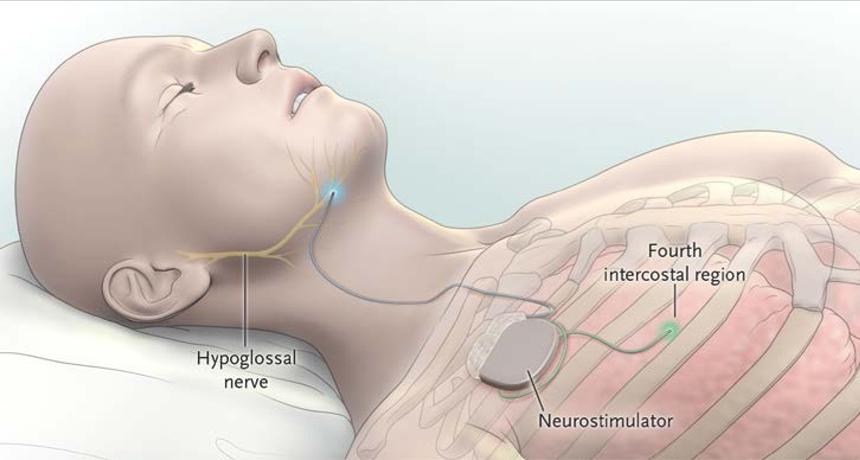 Leczenie OBS za pomocą stymulacji nerwu podjęzykowego (implant Inspire)