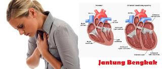 Waspadai Penyebab Penyakit Jantung Bengkak