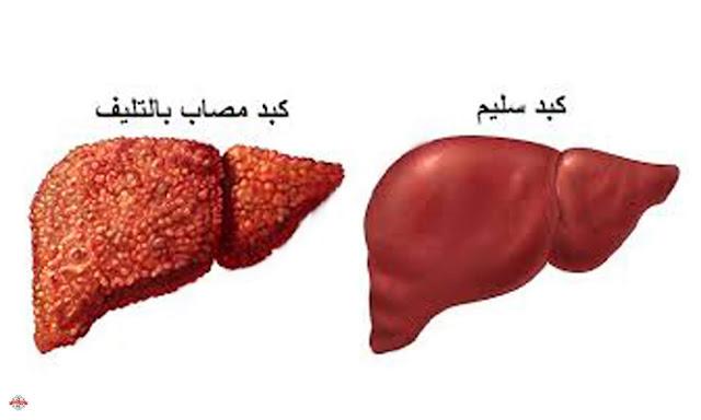 هل تعلم بما أوصانا الرسول حتى لا نصاب بالتليف الكبدي