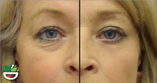 serul uleios pentru ridurile din jurul ochilor