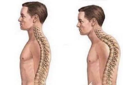 3 Cara Mudah Untuk Menghilangkan Sakit Pinggang, Sakit Leher dan Otot |