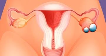 """O câncer de ovário não começa nos ovários: O """"matador silencioso"""" começa nas trompas de Falópio, revela  estudos"""