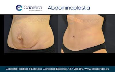 diastasis abdominoplastia