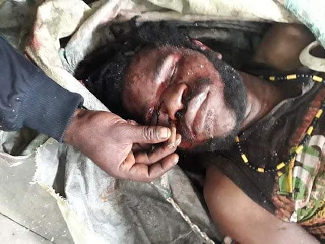 Sejumlah Warga Ditembak di Wagete, Markas Polsek Tigi Dibakar