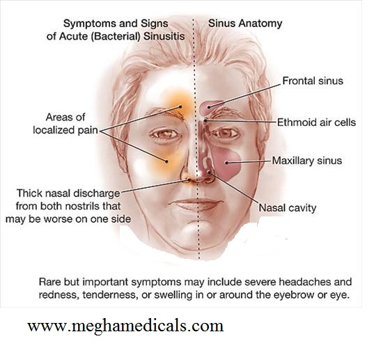 Images of Maxillary Sinus Cyst Symptoms - #rock-cafe