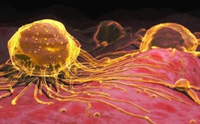 Bài 2: Tìm hiểu thực hư chuyện uống Nano vàng để chữa bệnh ung thư