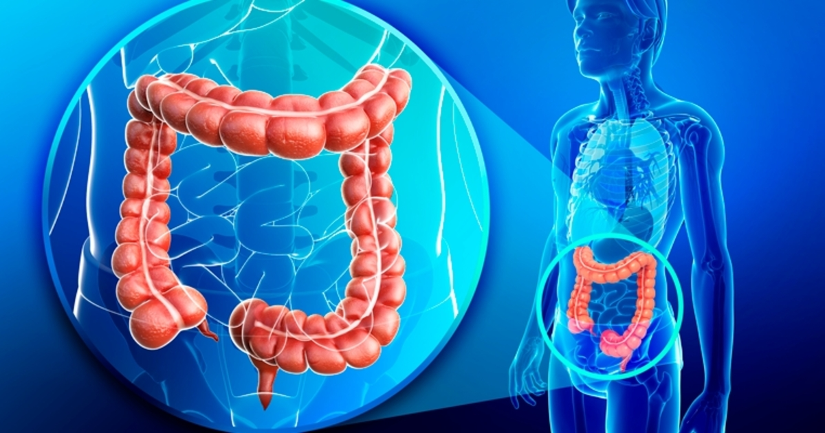 Crohn's-Disease: Symptoms and Treatment