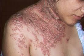 Obat Herpes Ampuh Atasi Dengan Aman