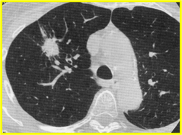 HEALTH FROM TRUSTED SOURCES: Lung cancer