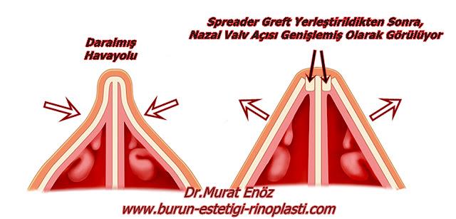 Spreader Greft - Burun Valv Bölgesi - Nazal Valv Ameliyatı
