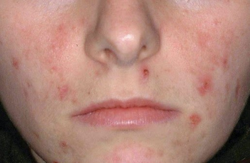 acne excoriee scar treatment | acne treatment system