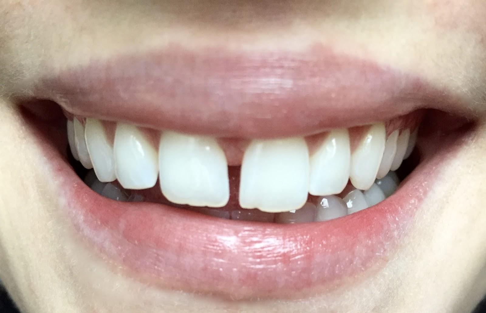 bile zuby
