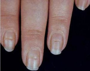 Horizontal Nail Ridges Thyroid