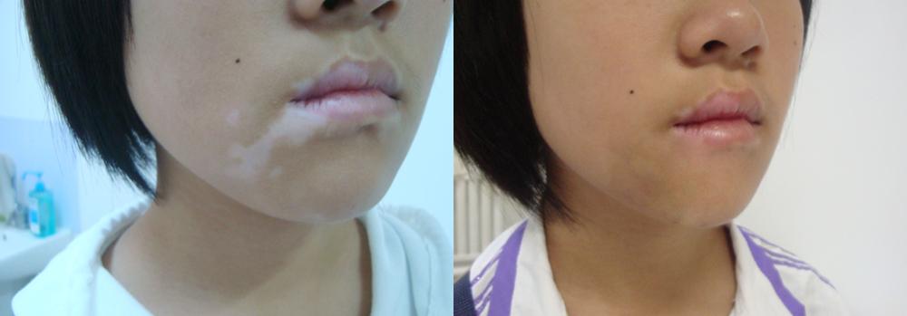 Piebaldism vs vitiligo