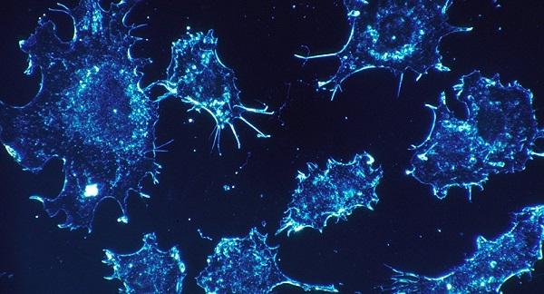 Το 43% των καρκίνων μπορούν να αποφευχθούν