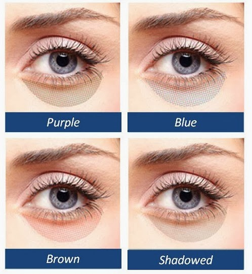 Which Kind Of Under-Eye Circles Do You Have? | Cosmetic ...