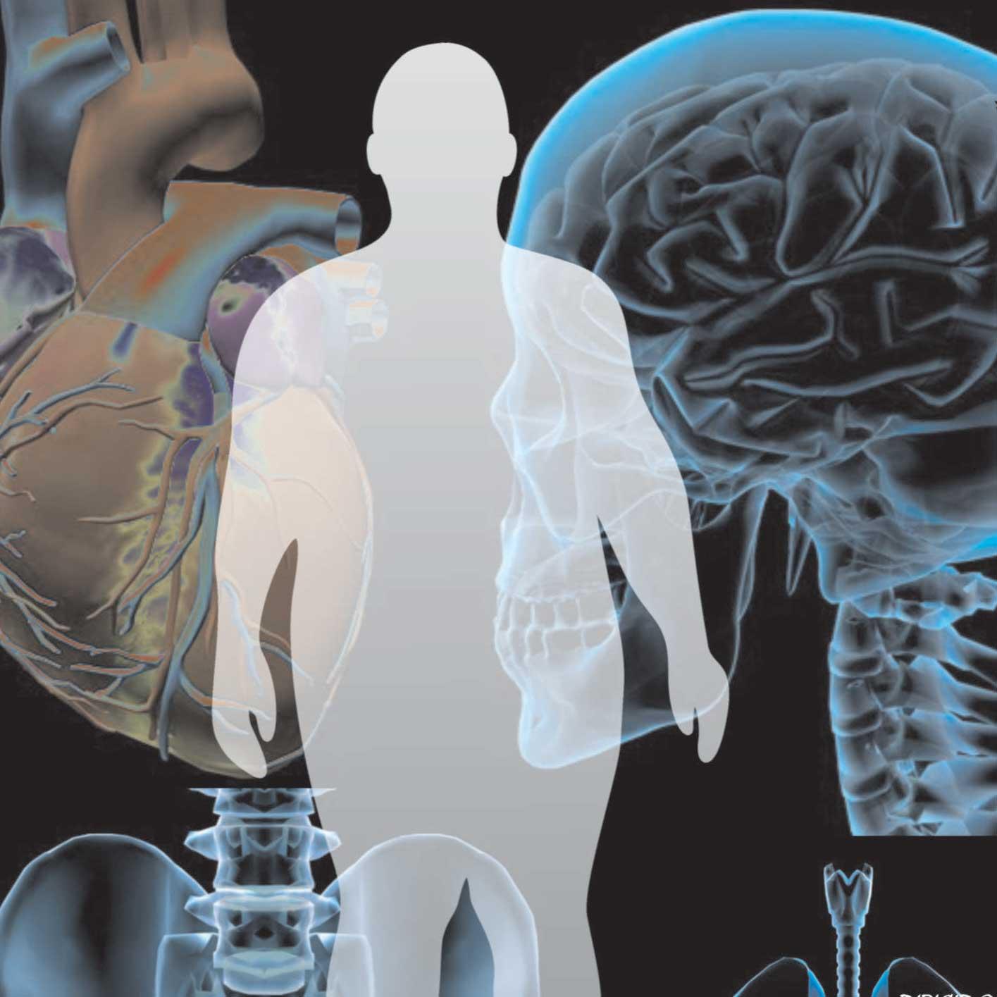 CONTROL DE PESO INTEGRAL CARLEO: Síndrome Metabólico