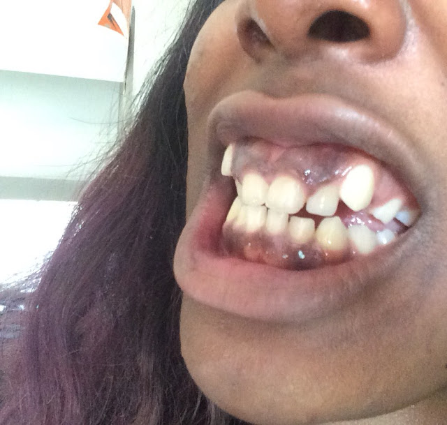 Photos: US-based Nigerian lady with deformed teeth shows off the incredible transformation after dental surgery