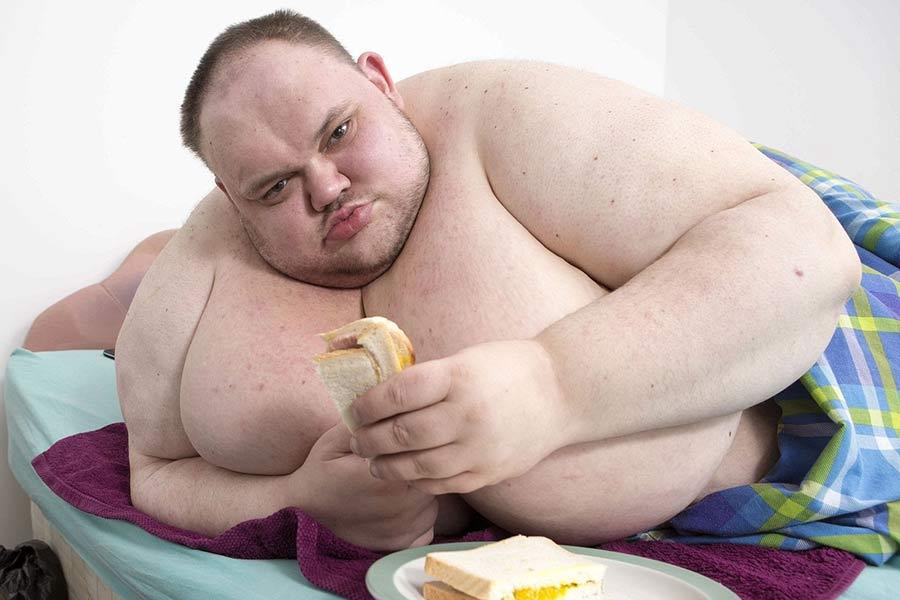دراسة تؤكد أن ضعف جهاز استشعار الدهون هو السبب في أمراض السمنة والكبد