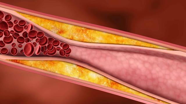 tensiunea arteriala mare este buna pentru persoanele in varsta