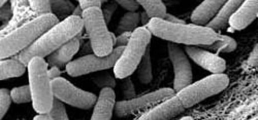 Convocadas de nuevo por 1,6 millones de euros las ayudas indemnizatorias para la erradicación y el control de la Xylella fastidiosa