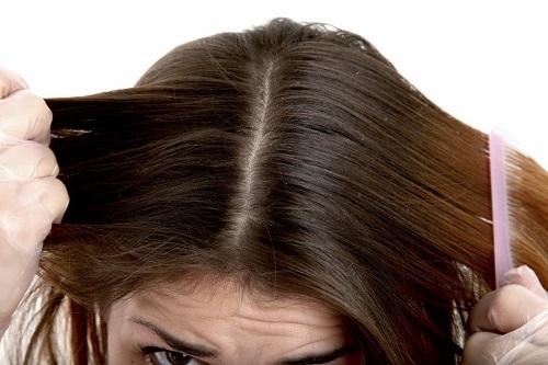 tratamiento de la psoriasis del cuero cabelludo