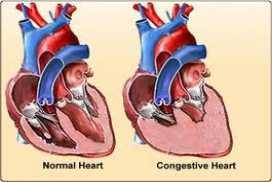 Cara Ampuh Menyembuhkan Gagal Jantung Kongestif Sampai Sembuh Total