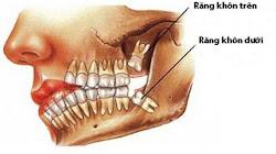 Tại sao mọc rõ là ngu mà vẫn được gọi là răng khôn