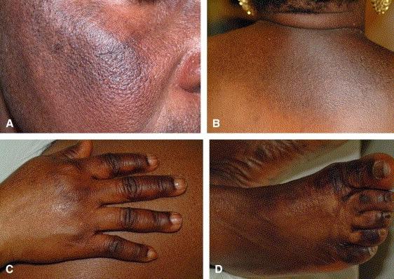 Image result for black skin sun burn