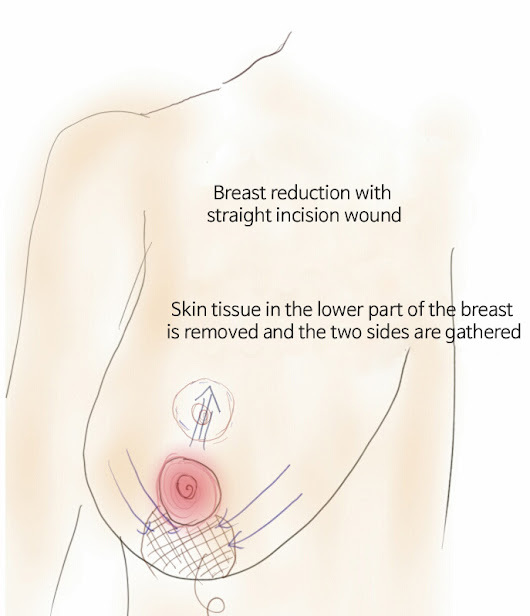 Dr. Lee Breast augmentation Korea: Breast reduction Seoul - vertical(lollipop) and L-shaped incision mammoplasty