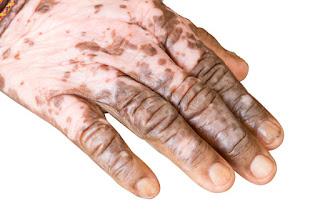 Cara Mengobati Penyakit Vitiligo