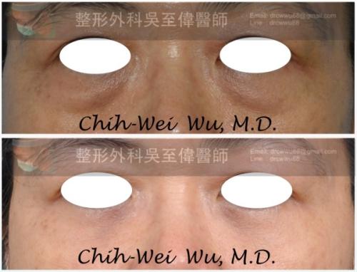 眼袋-%25E7%259C%25BC%25E8%25A2%258B%25E5%2585%25A7%25E9%2596%258B-01-500
