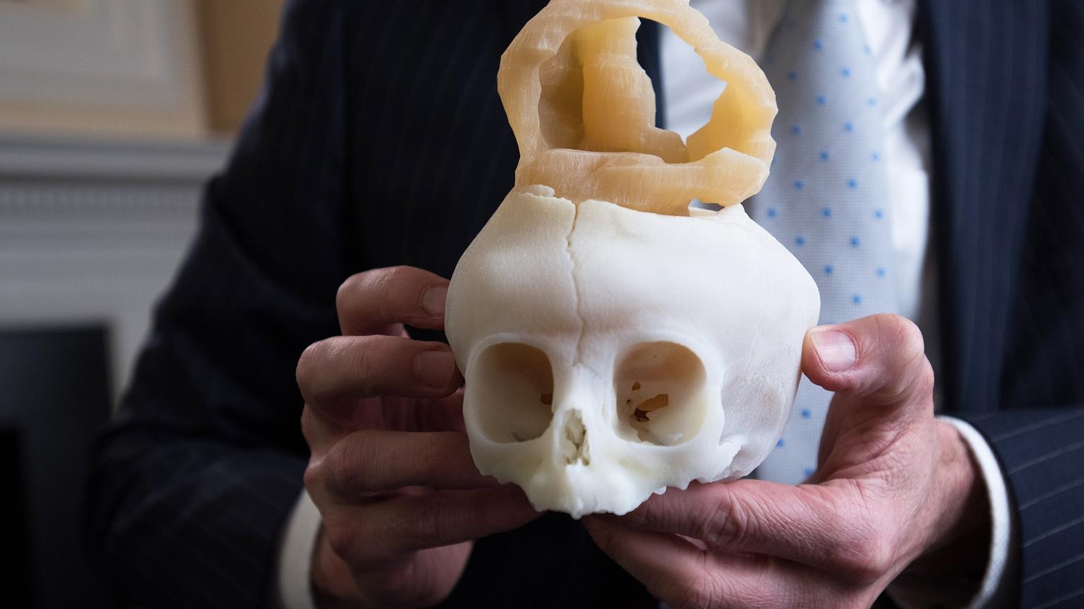 3D Printing saving lives