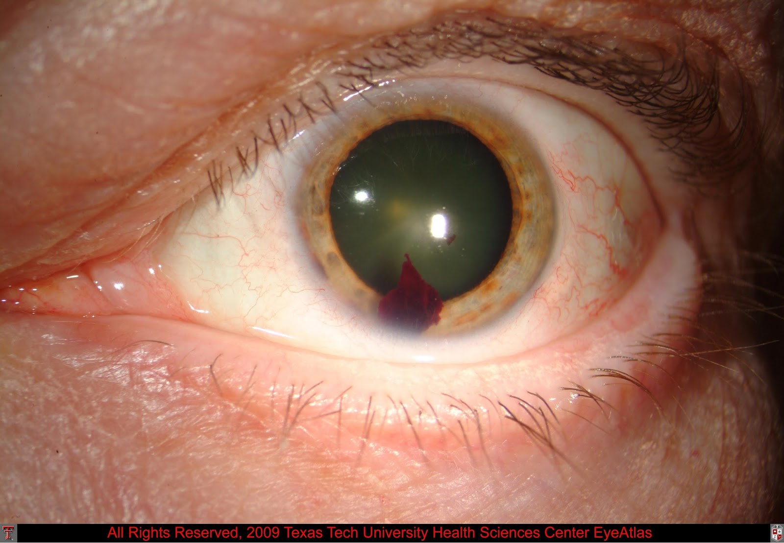 hyphema pictures blood in the eye managing hyphema eyedolatry 5027