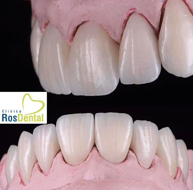 CARILLAS DENTALES EN CLINICA ROS DENTAL