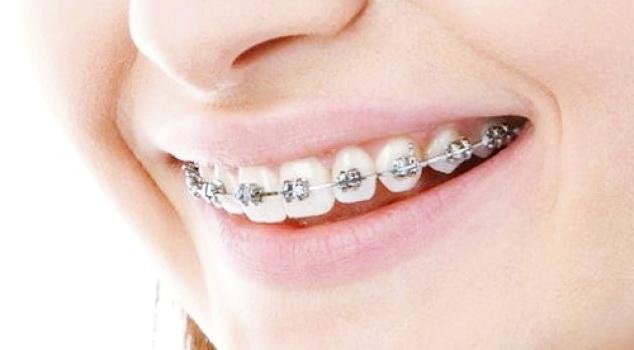 Begini Hukum Memakai Kawat Gigi Menurut Islam