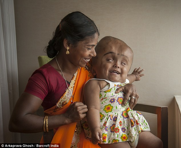 Hydrocephalus Miraculously Survived Surgery