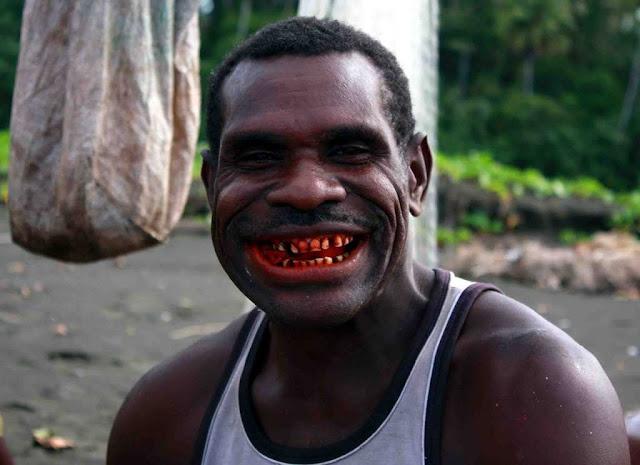 Kebiasaan Makan Sirih Pinang Jadi Pemicu Kanker Mulut Terbesar di PNG
