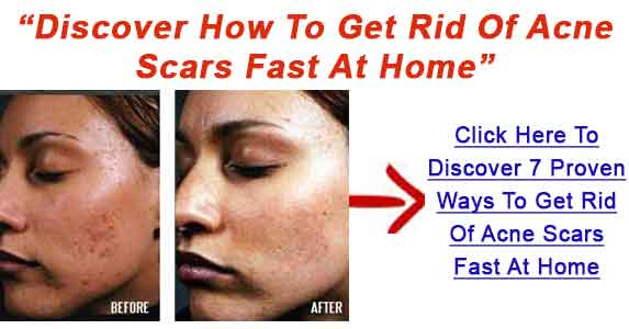 How To Get Rid Of Pimple Scars Fast Heal Acne Marks Easily How Can I Get Rid Of Acne Scars Fast Find Out Steps For Eliminating Acne Marks