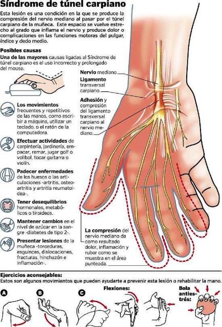 Os principais sinais e sintomas da síndrome do túnel do carpo incluem:  Dormência ou formigamento do polegar e dos dois ou três dedos seguintes, de uma ou de ambas as mãos Dormência ou formigamento da palma da mão Dor que se estende até o cotovelo Dor no punho ou na mão, de um ou dos dois lados Problemas com movimentos finos dos dedos (coordenação) em uma ou ambas as mãos Desgaste do músculo sob o polegar (em casos avançados ou de longa duração) Movimento de pinça débil ou dificuldade para carregar bolsas (uma queixa comum) Fraqueza em uma ou ambas as mãos.