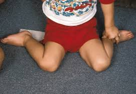 Children often W-sit when they have low muscle tone or hypotonia