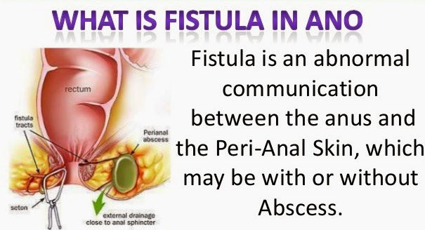 Exercise following anal fistula surgery