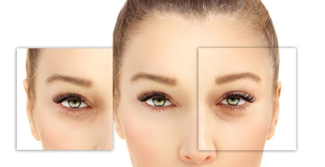 permenant removal of dark circles