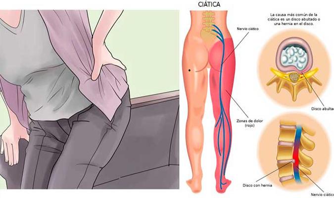 Causas por las cuales se inflama el nervio ciatico