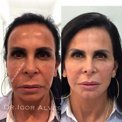 Harmonização facial Gretchen
