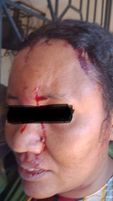 """This is the man who has sworn to kill my younger sister"" - Kenyan man calls out brother-in-law over physical abuse of his sister"