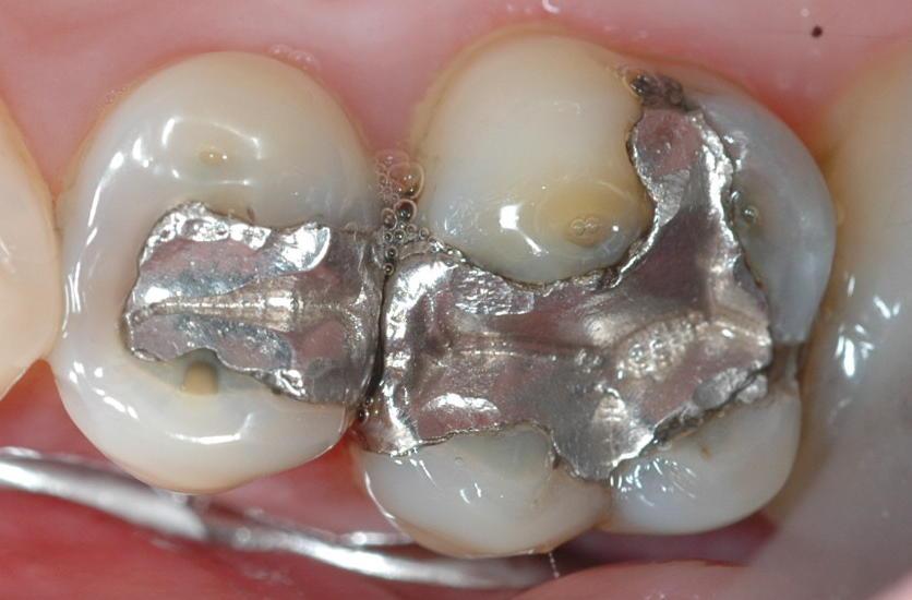Amy: Eliminarea metalelor grele din organism
