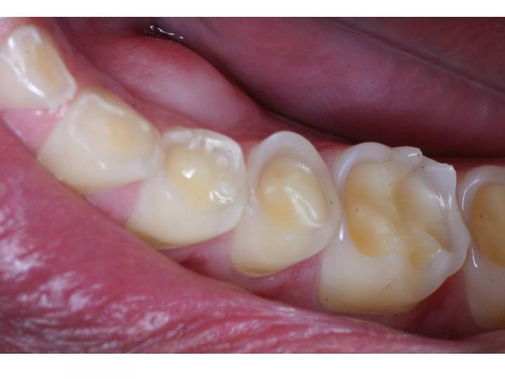 Ortodontia E Arte Clareamento Dental Caseiro