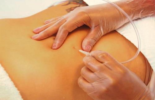 ¿Qué es y para qué es utilizado el tratamiento de la Carboxiterapia?